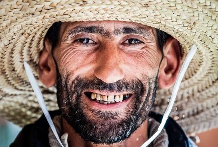 Alles über Zahnverfall
