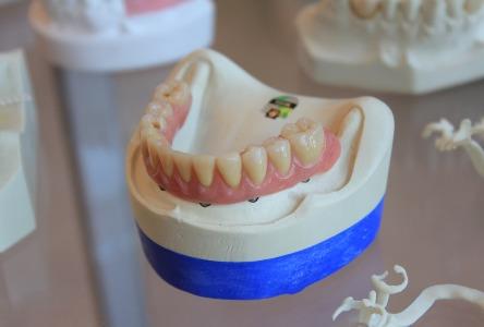 Kann die Zahnfleischerkrankung rückgängig gemacht werden?