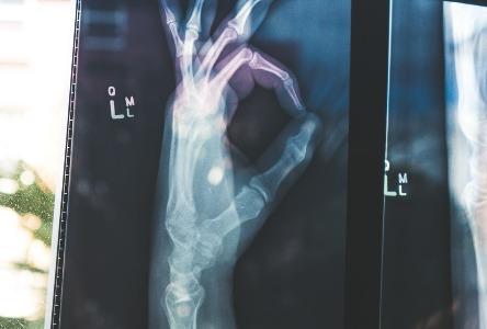 Alles, was Sie über Knochenscans wissen müssen