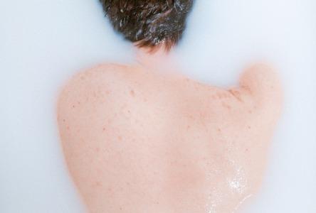 Natürliche Akne-Behandlungen
