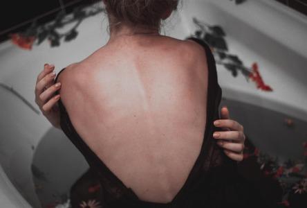 Chronische Sklerodermie